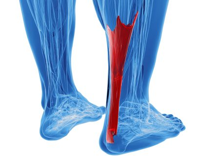 ECPC | Achilles Tendionopathy Foot Model