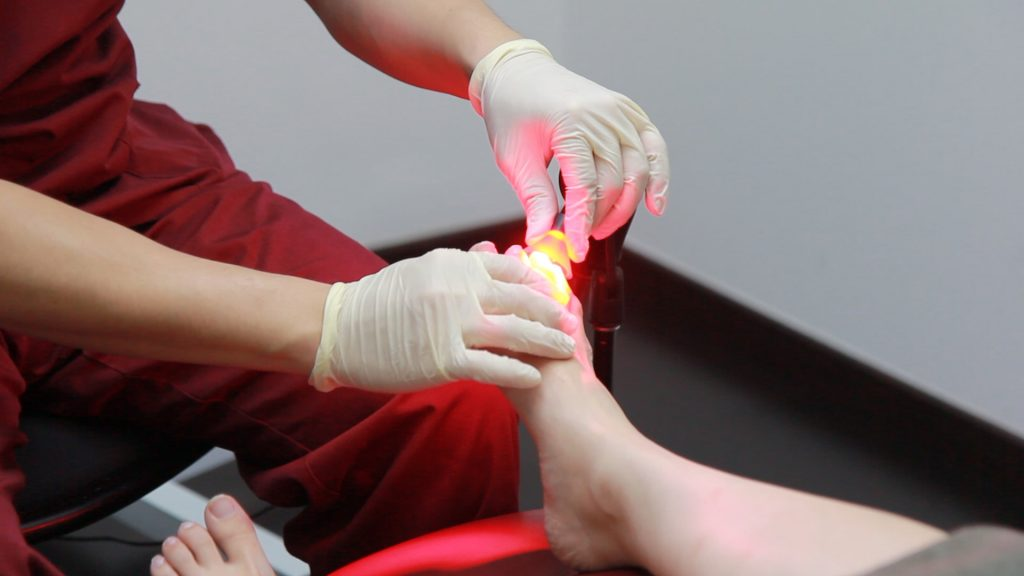 PACT Light Therapy | East Coast Podiatry