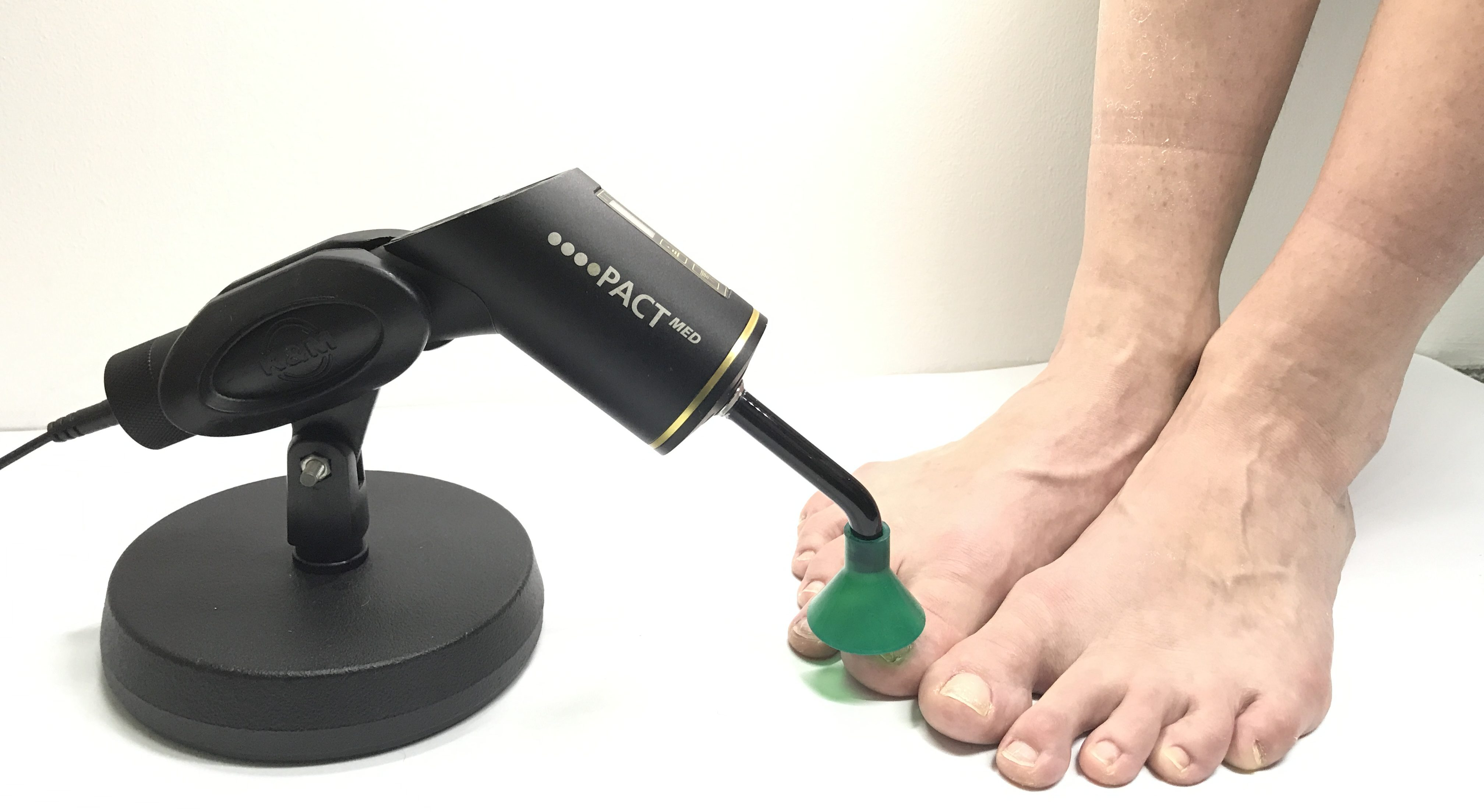 PACT machine for Fungal Nail