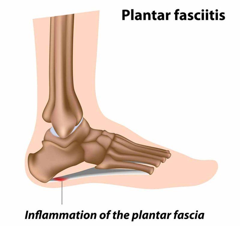 Plantar Fasciitis Inflammation