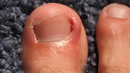 Podiatry Clinic In Singapore Ingrown Toenail Treatment