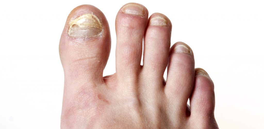 Clinical Treatments for Nail Fungal Infections