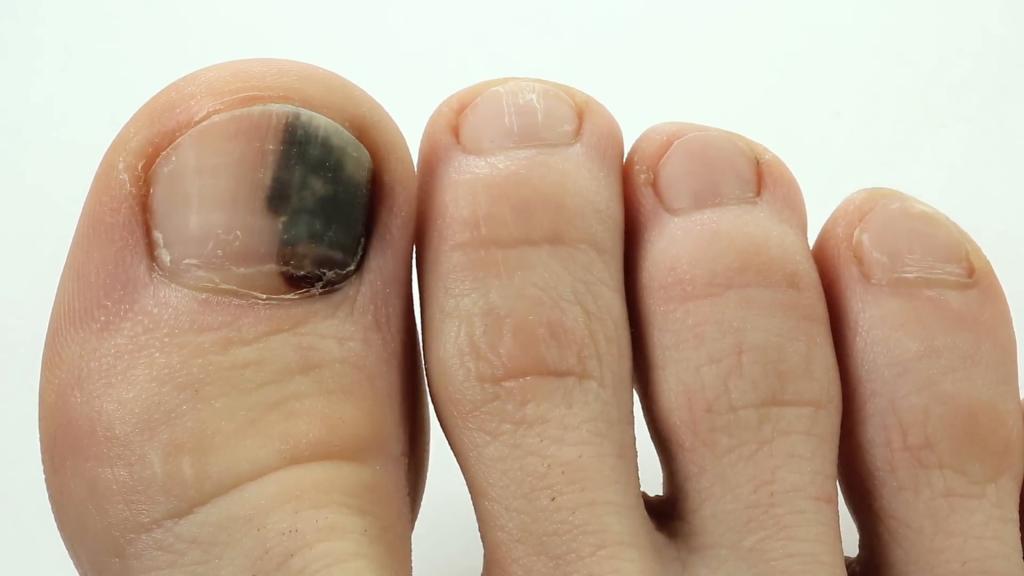 Bruised Black Toenail | East Coast Podiatry