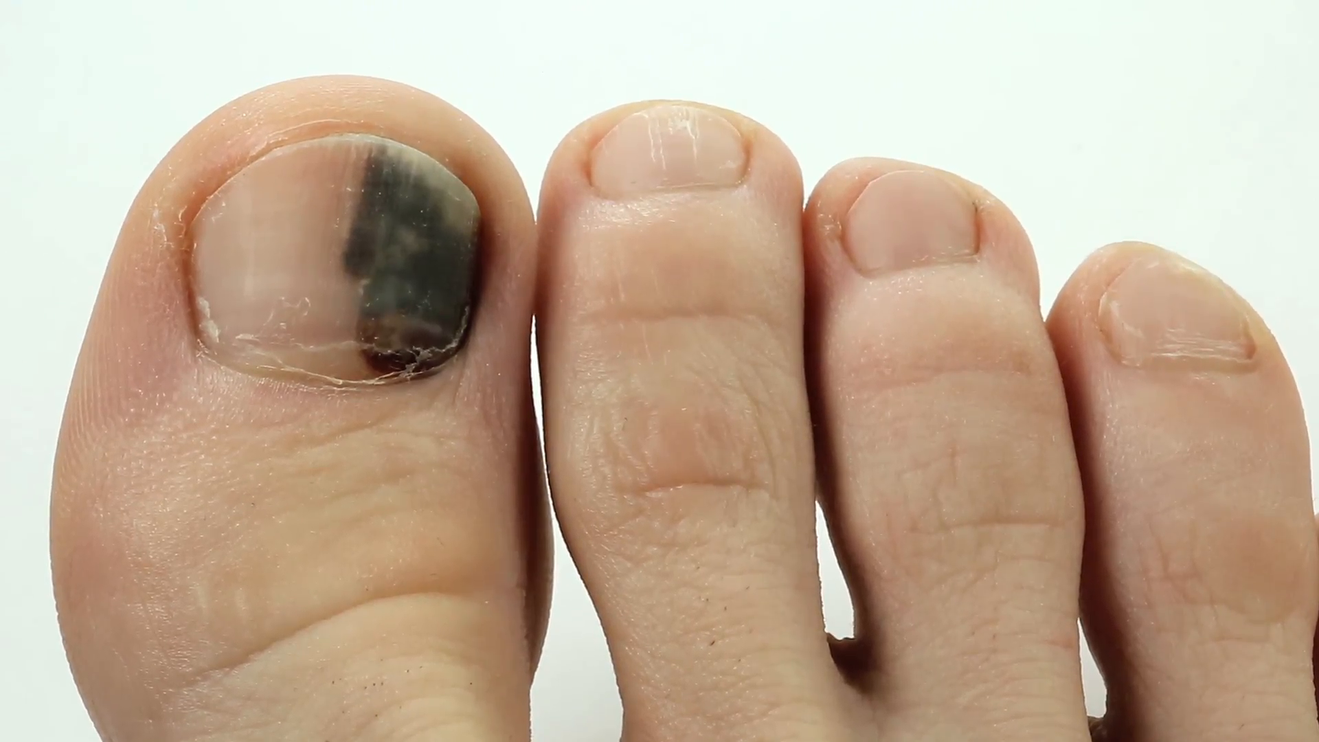 how to get dry blood out from under toenail