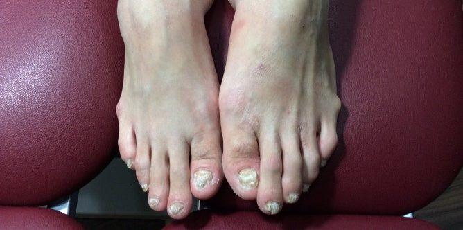 Severe fungal nail | East Coast Podiatry