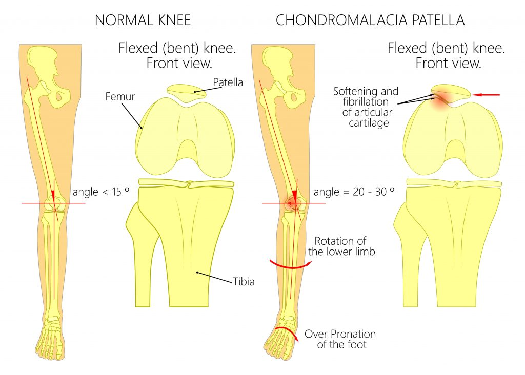 Chondromalacia Patella | East Coast Podiatry