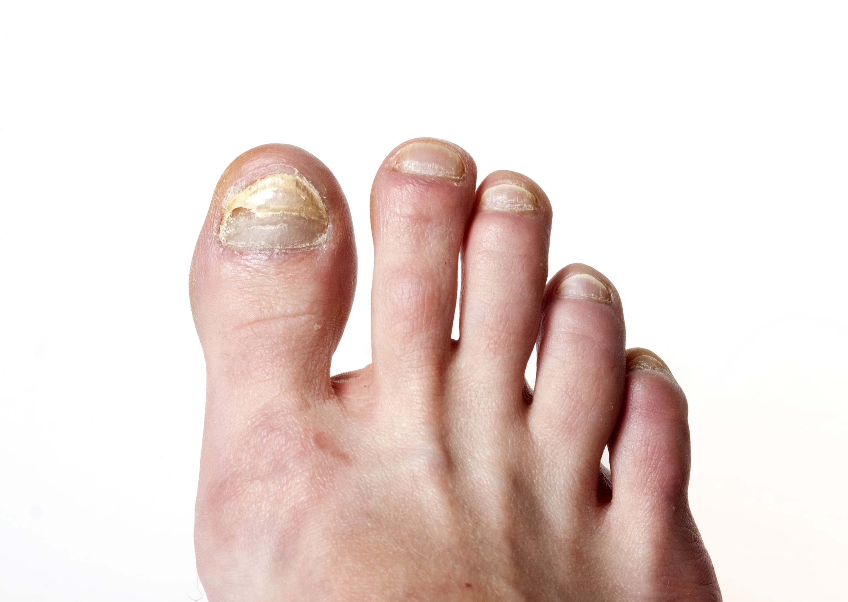 Tropical Climate Causing Fungal Nail