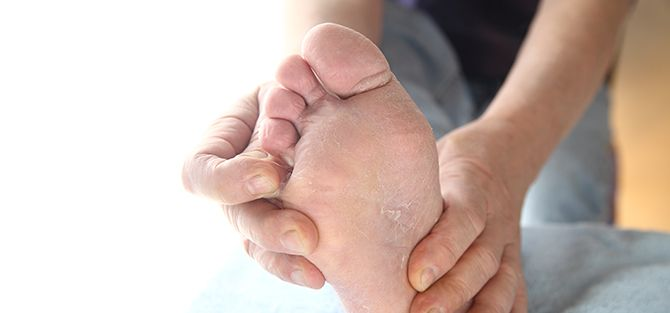 Athlete's Foot | East Coast Podiatry
