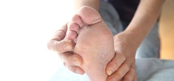 Athlete's Foot | East Coast Podiatry