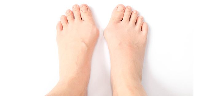Feet with Bunions | East Coast Podiatry