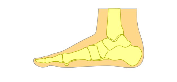 Flat Foot Condition | East Coast Podiatry