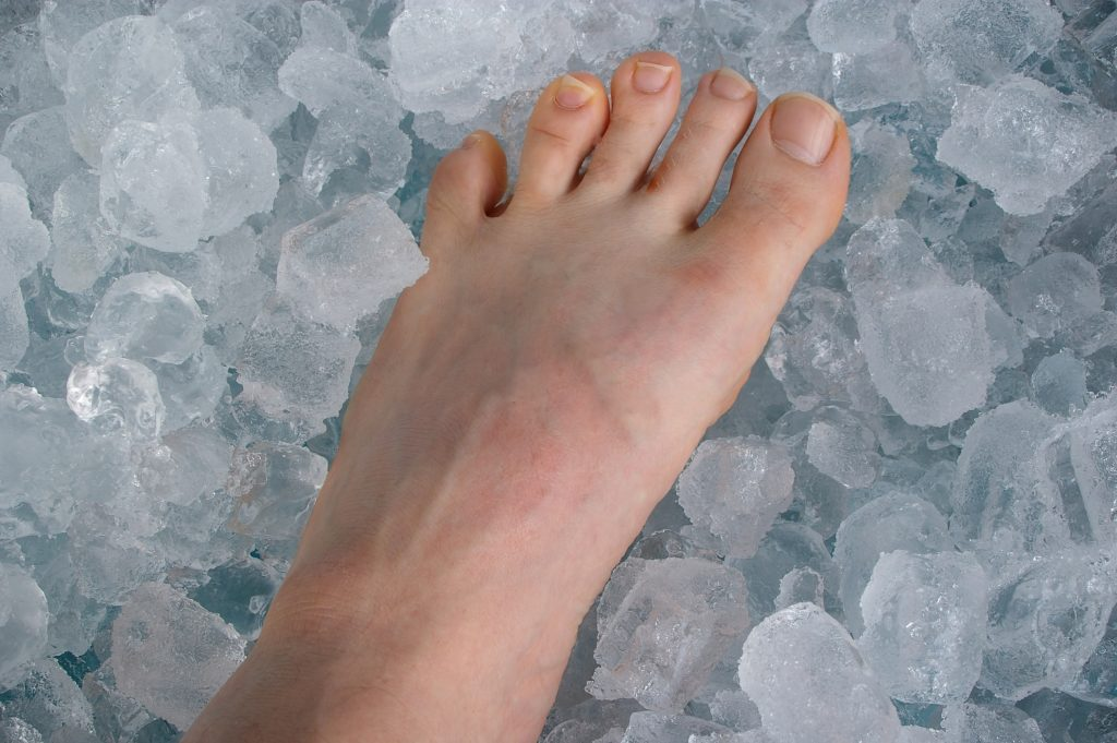 Foot with Ice | East Coast Podiatry