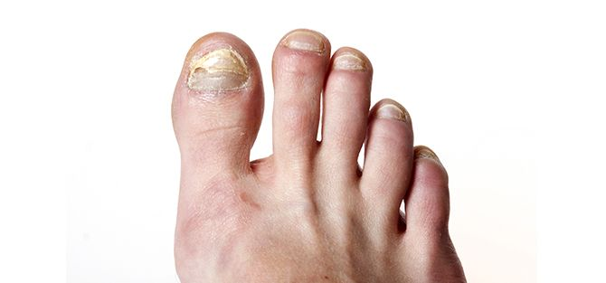 Fungal Nail on Foot | East Coast Podiatry