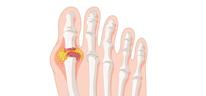 Gout Foot Condition | East Coast Podiatry