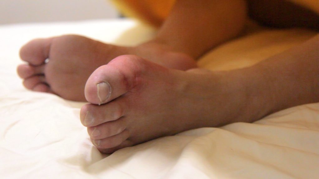 Gout Toe | East Coast Podiatry