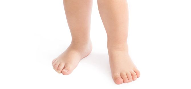 Out-toeing in Children | East Coast Podiatry