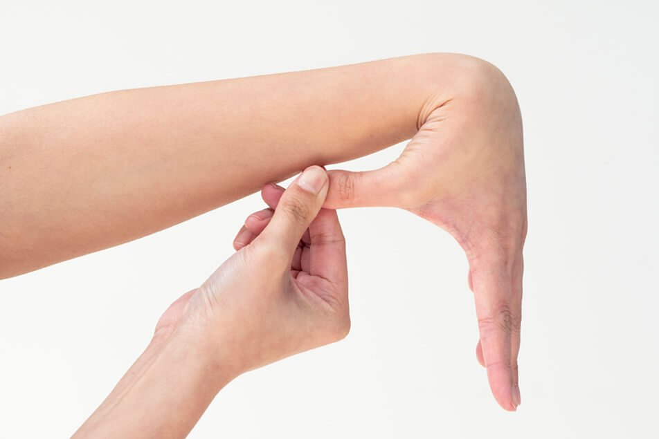 ECPC | Hypermobility Wrist and Thumb