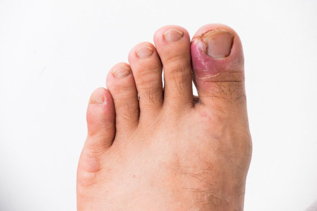 ECPC | Ingrown Toe Nail