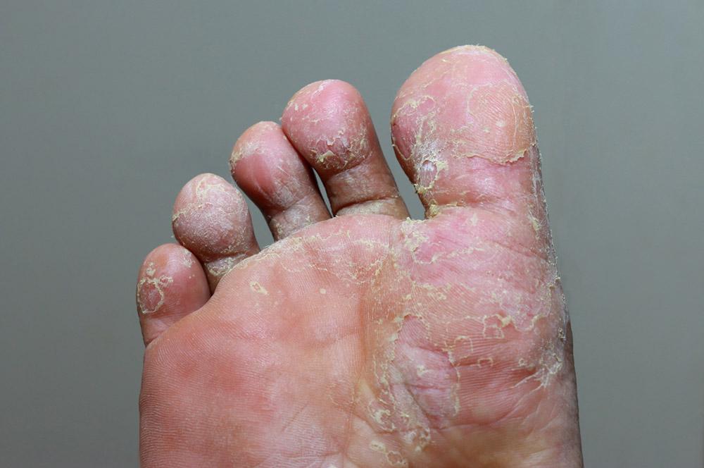 ECPC | Foot Rot