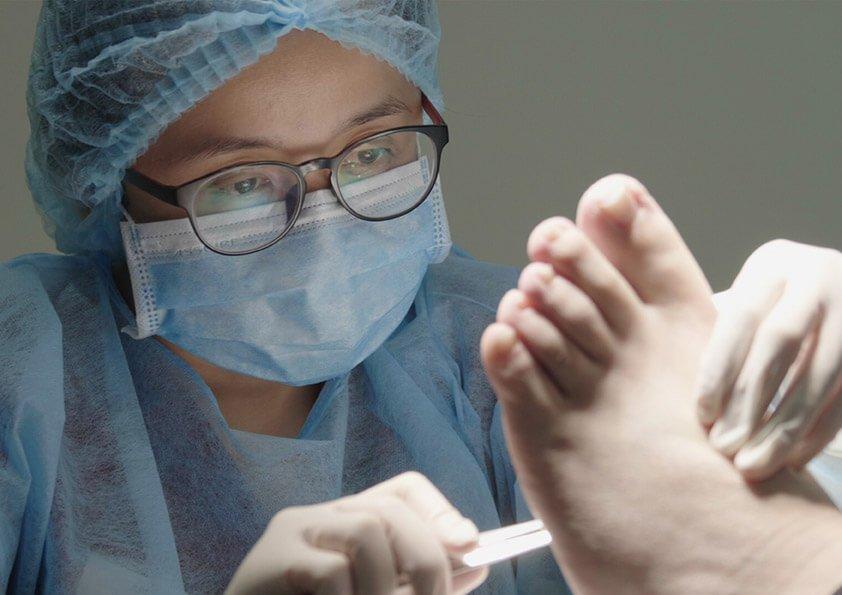 East Coast Podiatry | Surgical Debridement