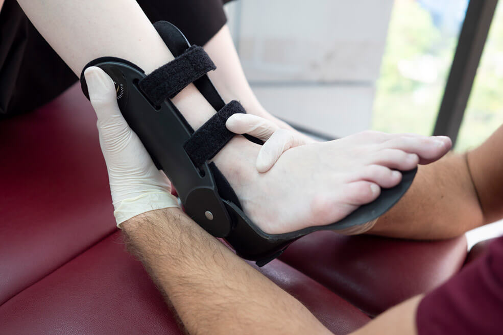 AFO for Plantar Fasciitis