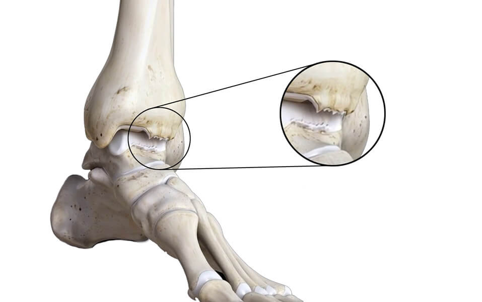 Development of bone spurs at the ankle joint