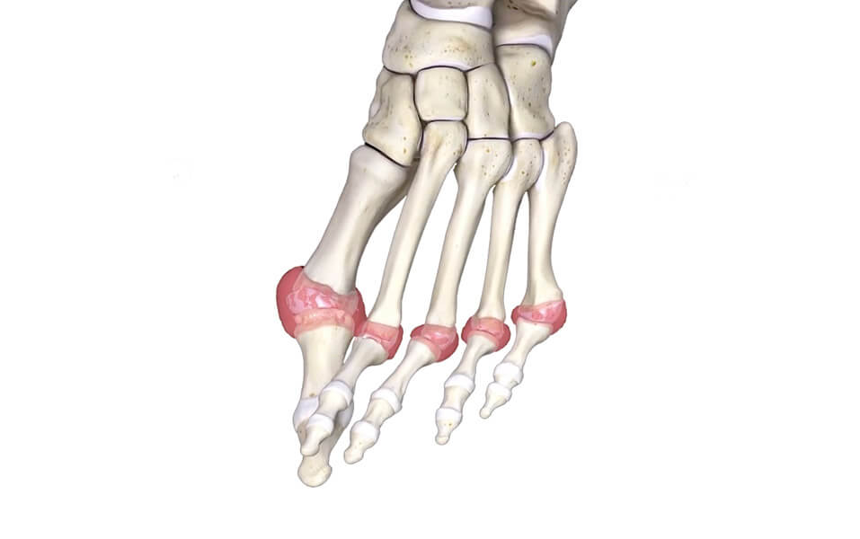 RA of the left metatarsal (toe) joints