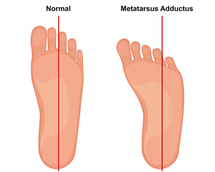 ECP | Metatarsus Adductus Compare Normal Feet