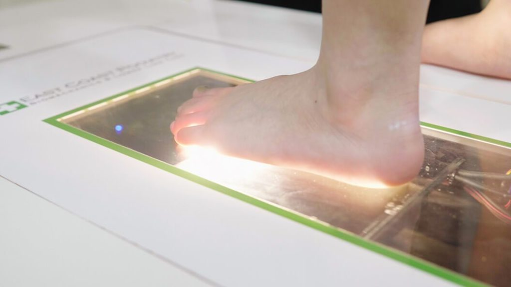 Flat Feet Foot Scan