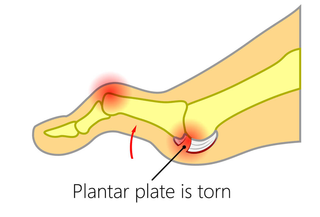ECP | Plantar Plate Tear Diagram