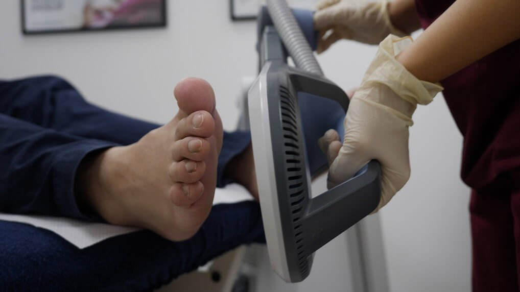 ECP | Plantar Plate Treatment