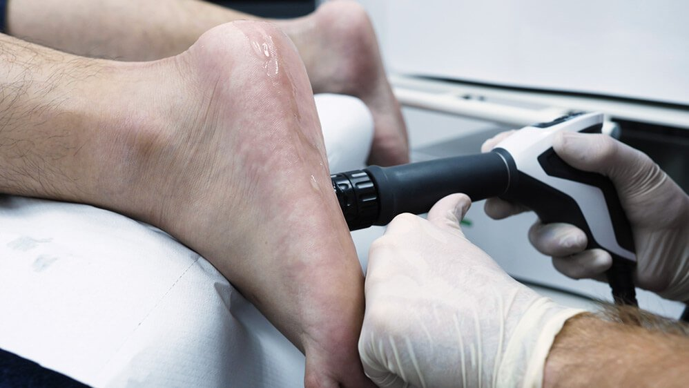 Plantar Fasciopathy Shockwave Therapy