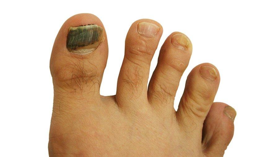 Nail Trauma | Big Toe