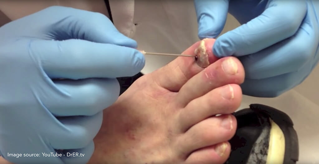 Nail Trauma | Customised insoles Treatment