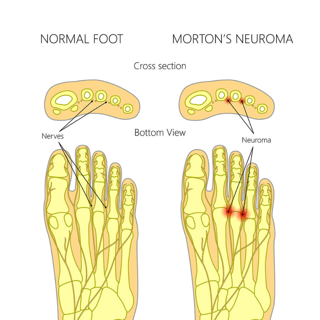 Morton Neuroma Comparison between Normal Foot
