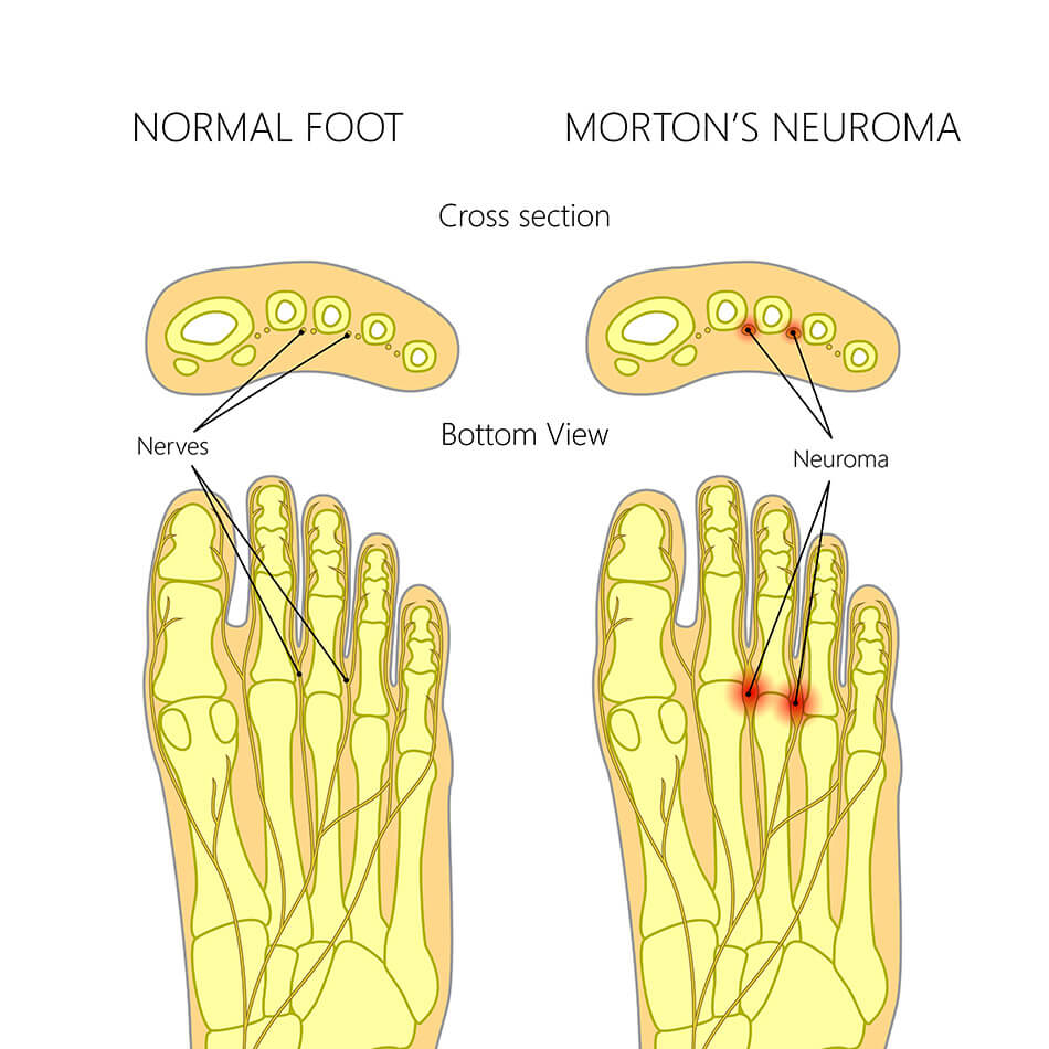 Morton Neuroma vs Normal Foot
