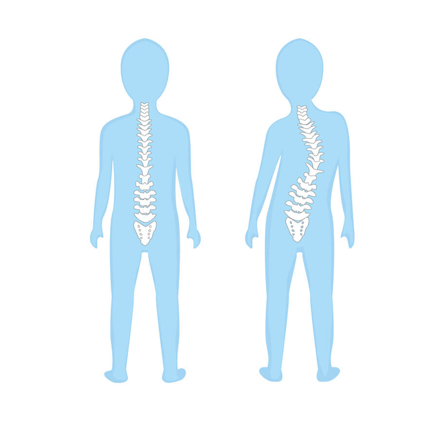 Paediatrics Spine Diagram