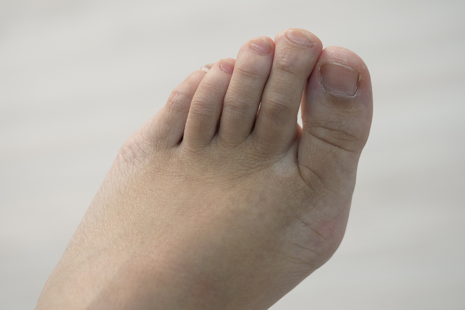 Bunions found in a teenage patient of East Coast Podiatry