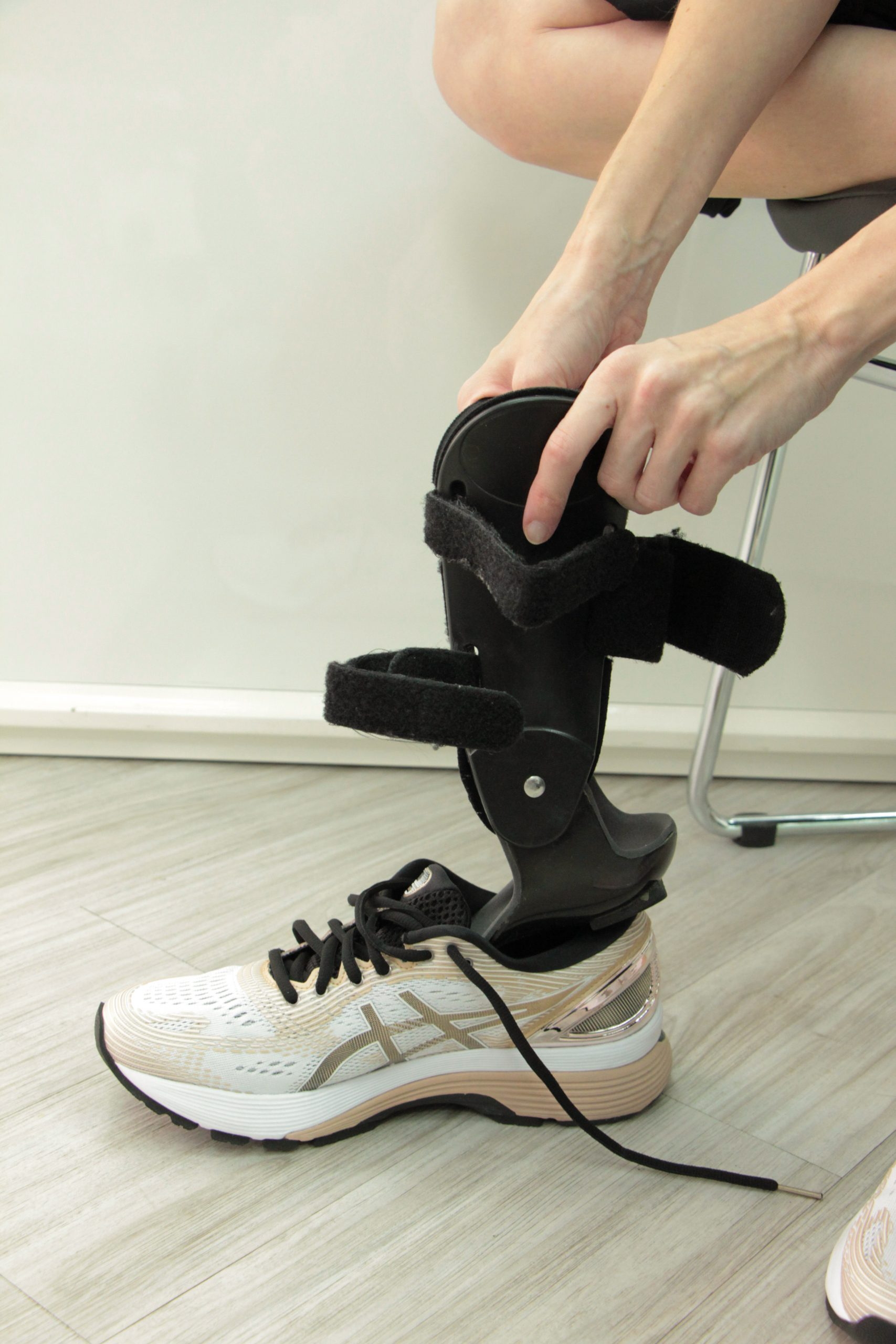 Ankle Foot Orthoses Fitting 1