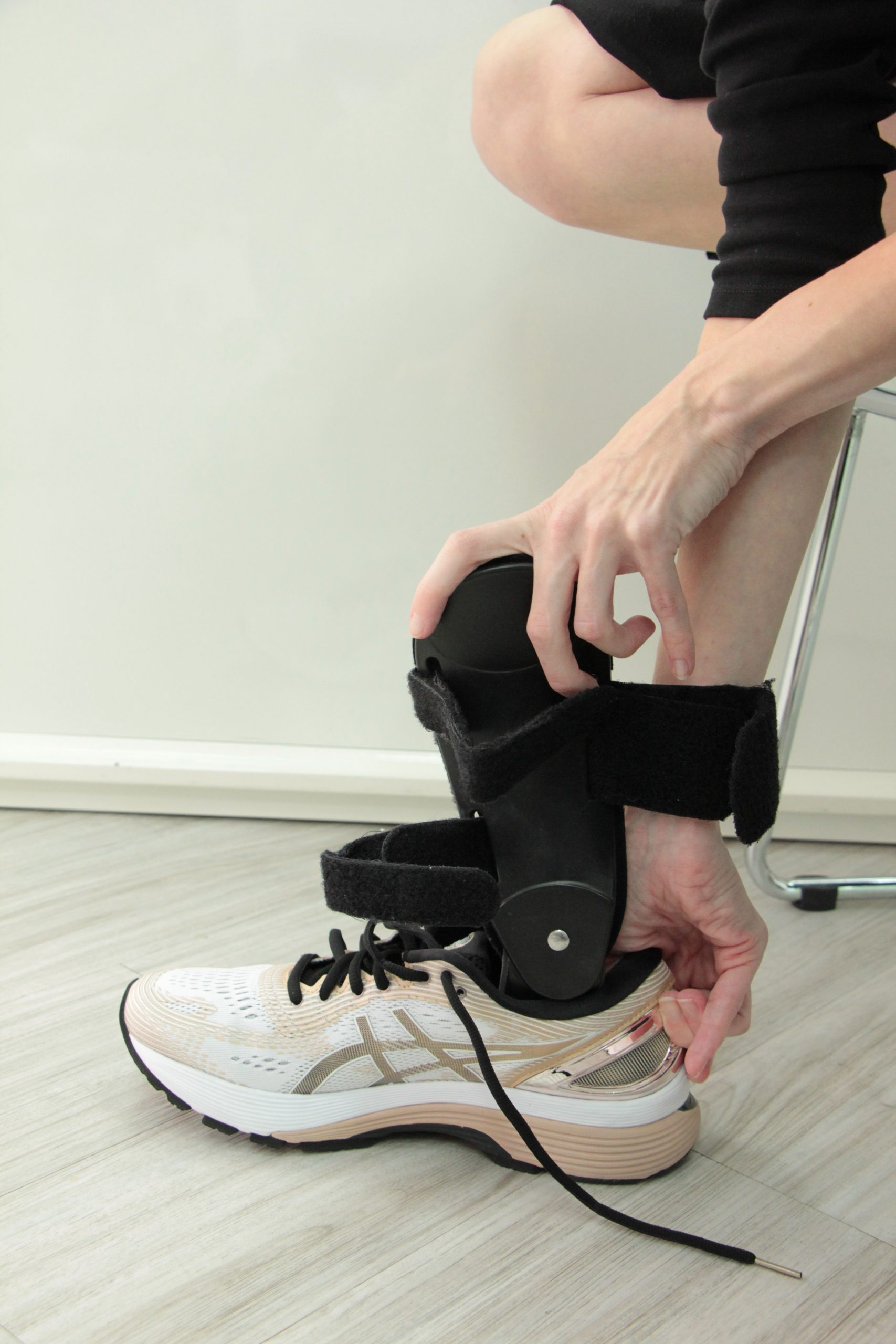 Ankle Foot Orthoses Fitting 2