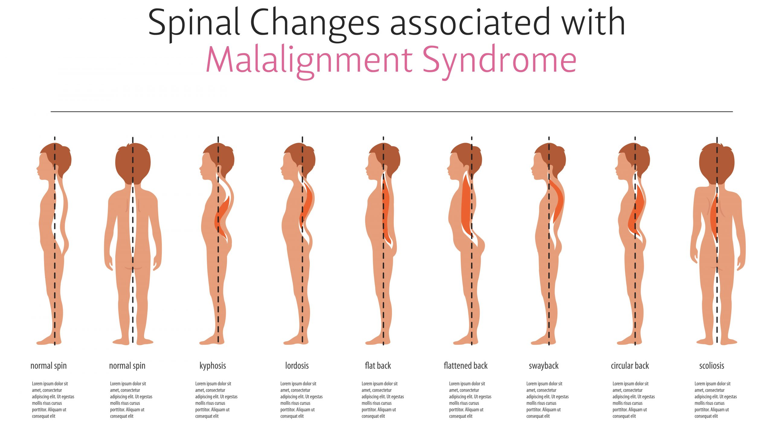 Spinal Changes due to Malalignment Syndrome