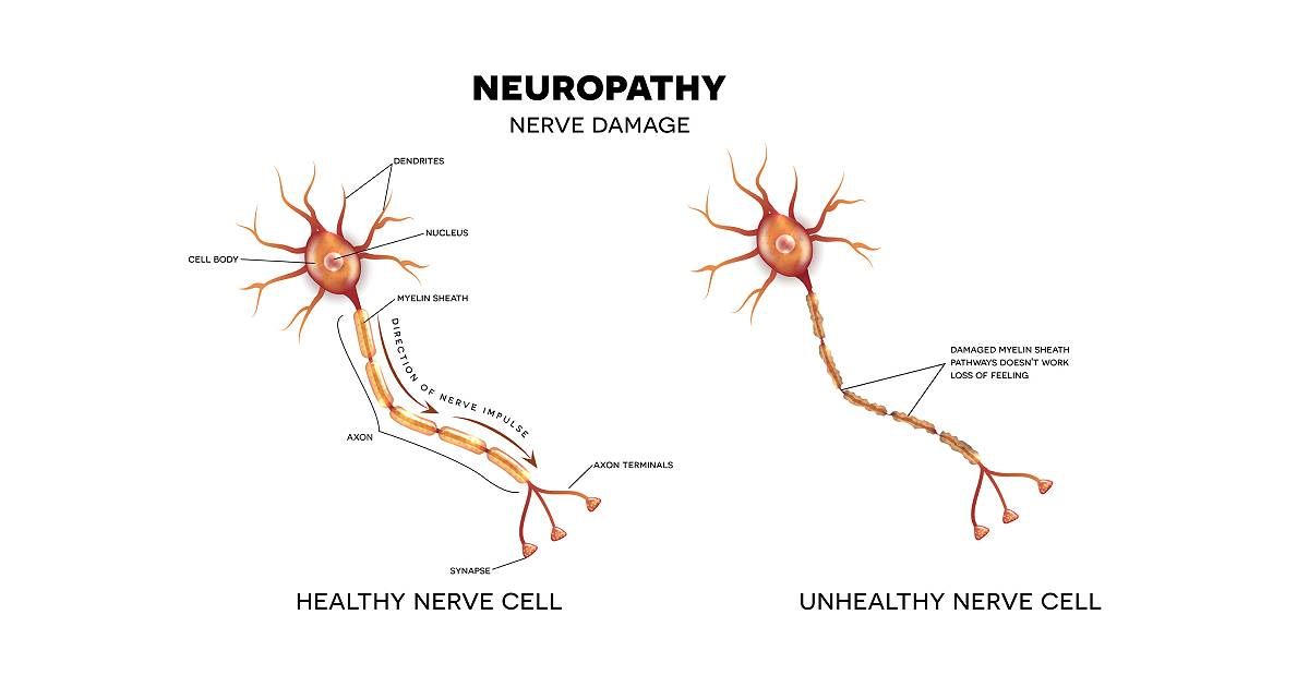 Nerve Damage caused by Diabetic Neuropathy