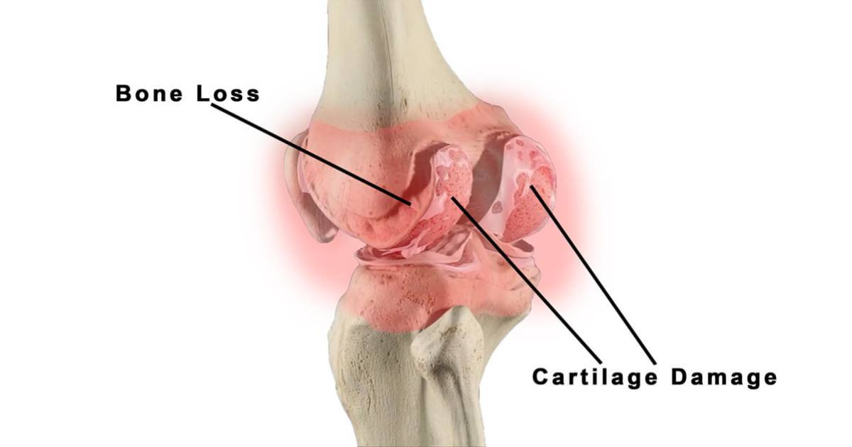 East Coast Podiatry | Bone Loss & Cartilage Damage