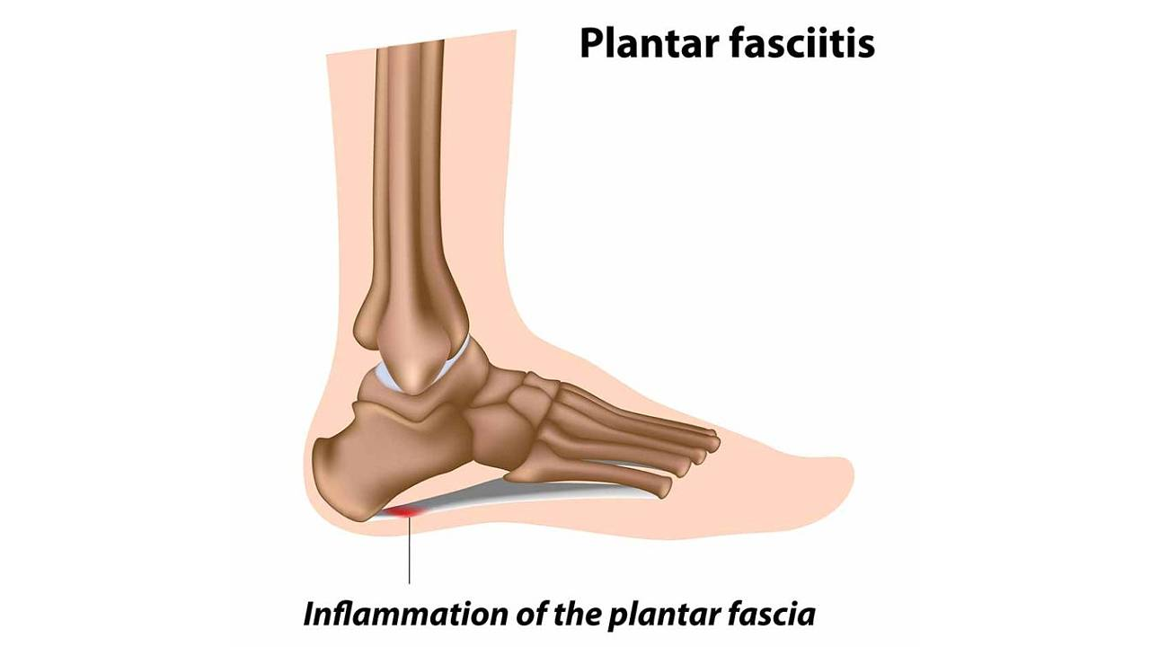 What is Plantar Fasciitis