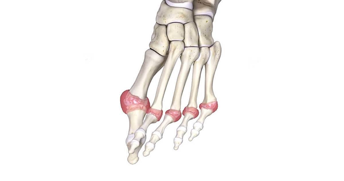 arthritis-of-the-foot-and-ankle-thumbnail