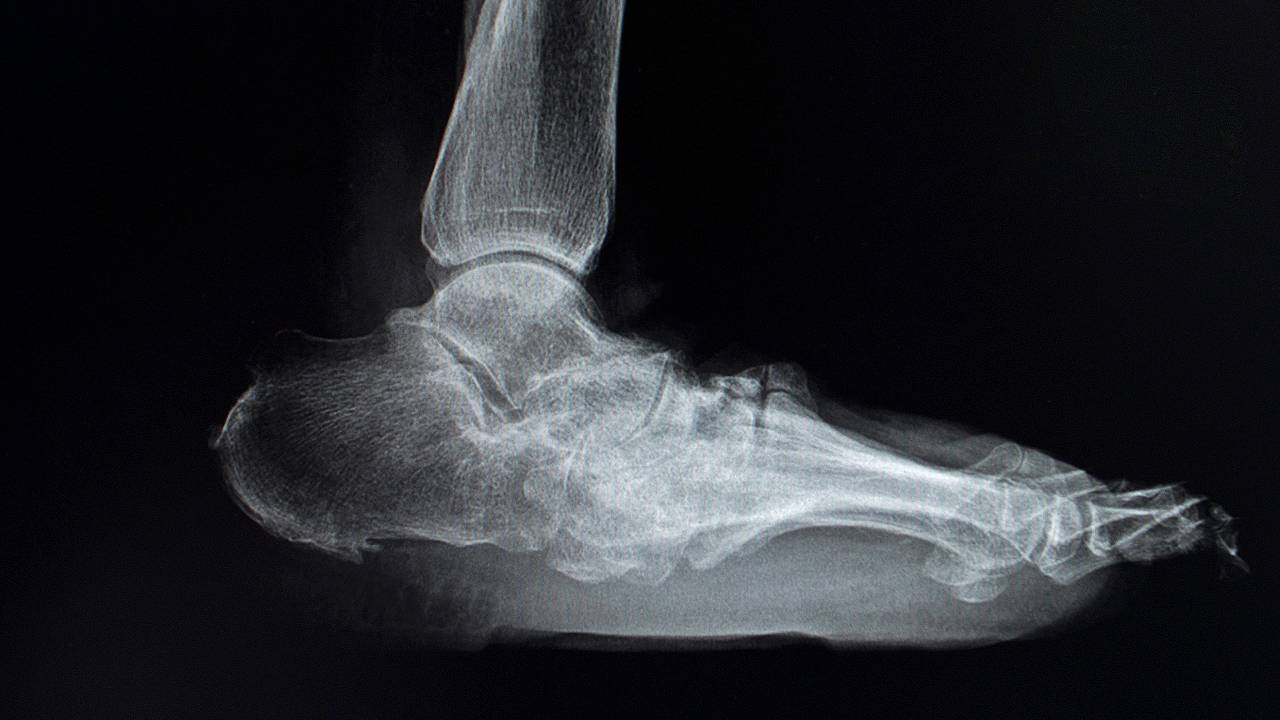 X-ray of Severe Charcot Foot