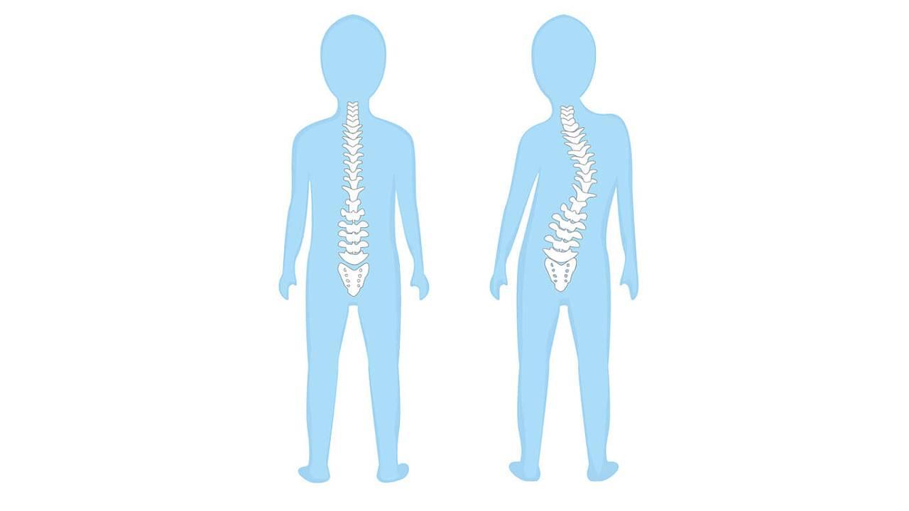 Paediatrics Spine Diagram