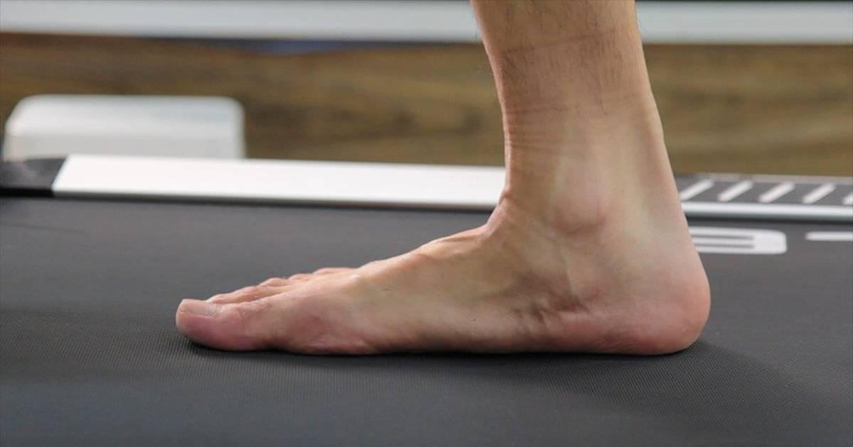 flat-foot-thumbnail