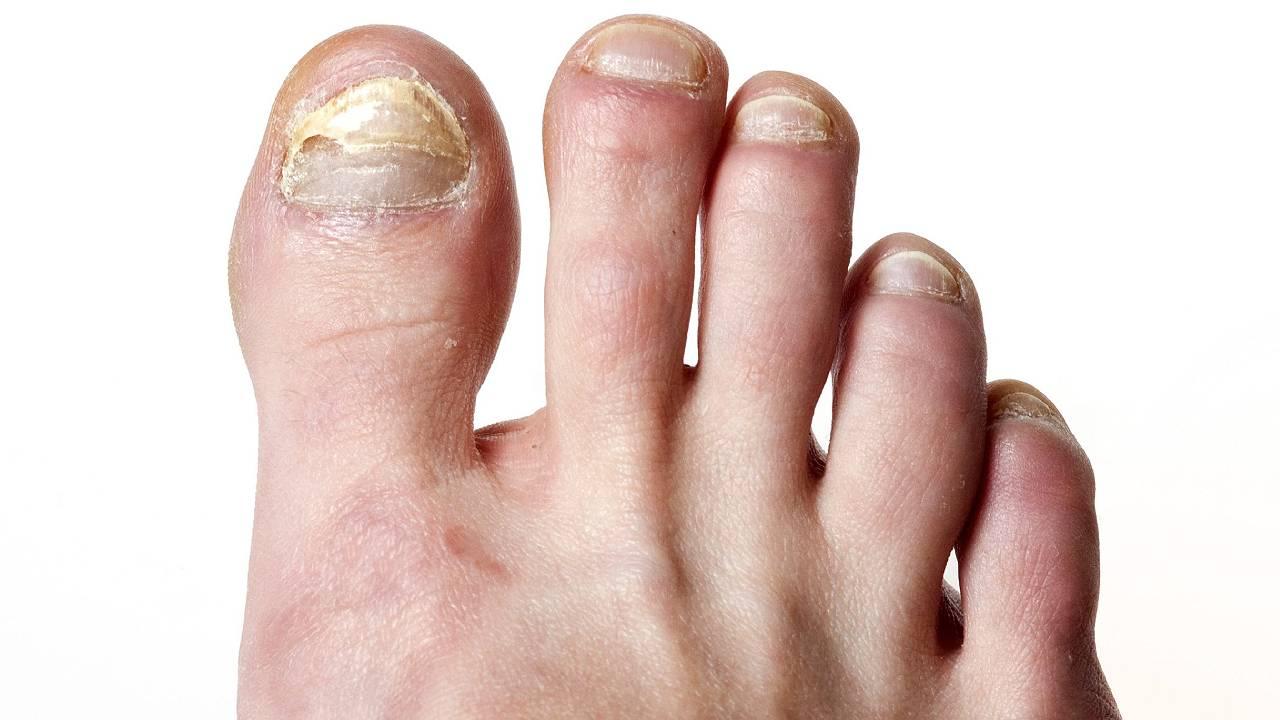 Fungal Nail Big Toe