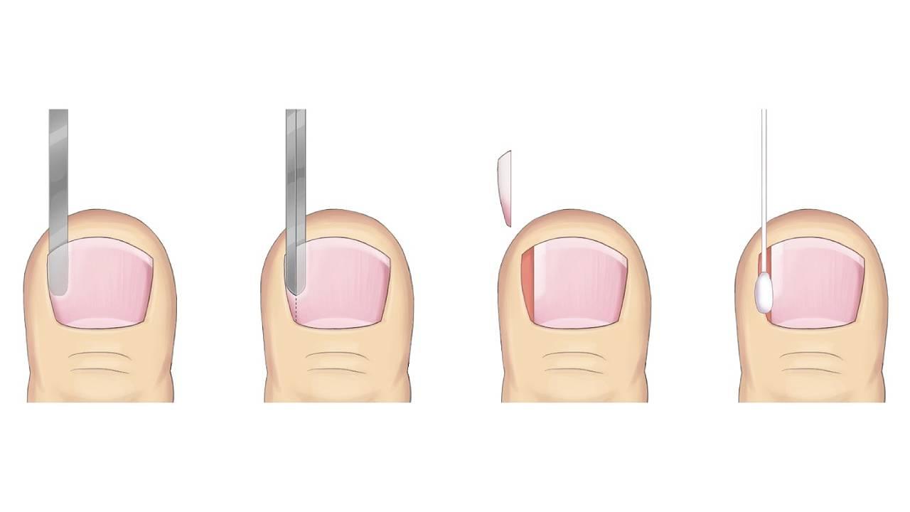 Partial Nail Avulsion